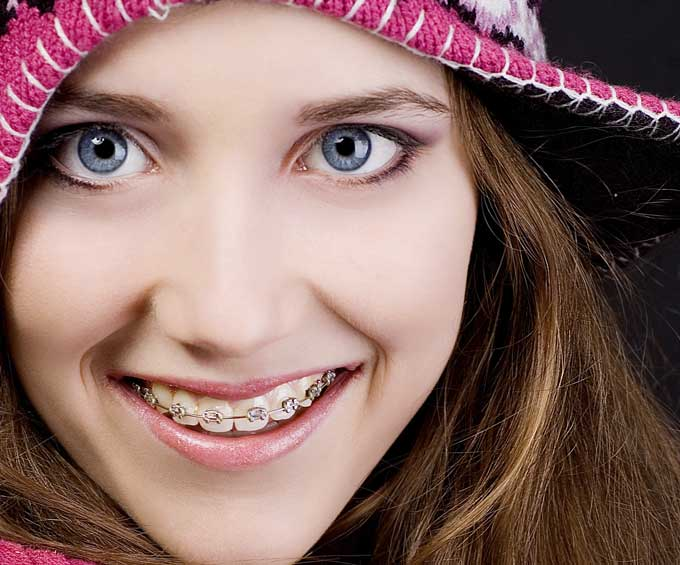 Orthodontic fittings and adjustments